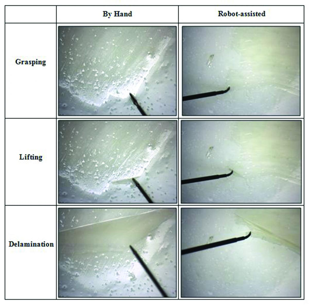 Comparison Of Epiretinal Membrane Removal Both The Hand Held And Robot Assisted Removals Were Successful